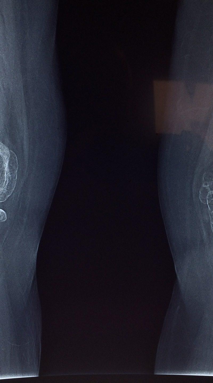 Popularność artroskopii.